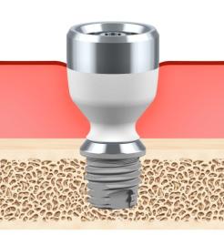 Baha-abutment-implant-titanium
