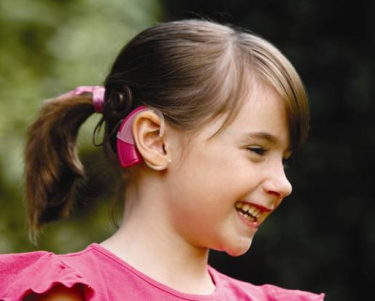 cochlear-implant-children-baha