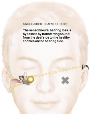 baha-single-sided-deafness-cochlear