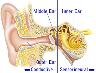 conductive-sensorineural-hearing-loss